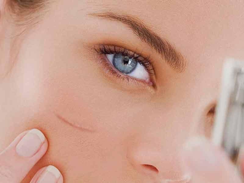 Bahaya Tekasol Cream Palsu