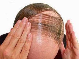 Kirkland Minoxidil Untuk Rambut