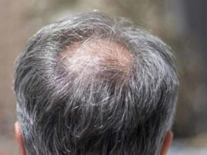 Herbal Penumbuh Rambut  Minoxidil